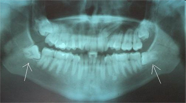 Wisdom-Teeth-Removal-xray