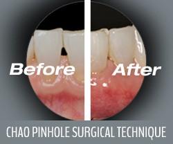 Chao Pinhole Surgical Technique